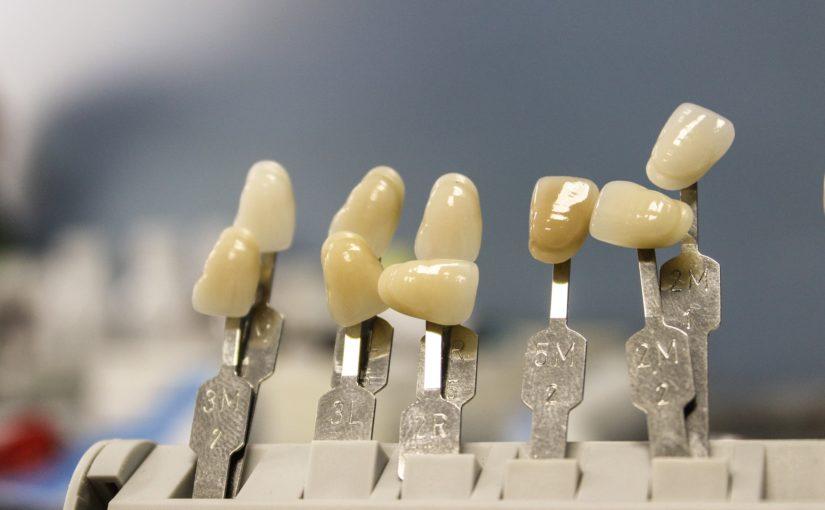 Prześliczne urodziwe zęby także olśniewający przepiękny uśmieszek to powód do płenego uśmiechu.