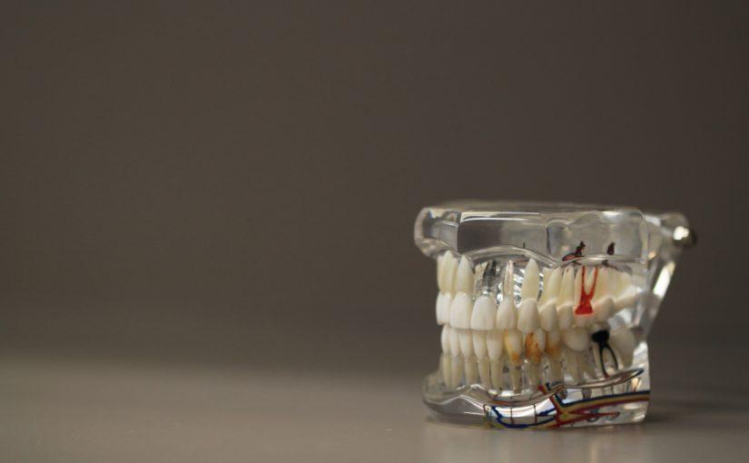 Zły sposób żywienia się to większe ubytki w zębach oraz także ich brak